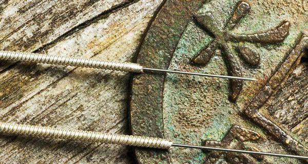puntos de acupuntura para el dolor en la ingle